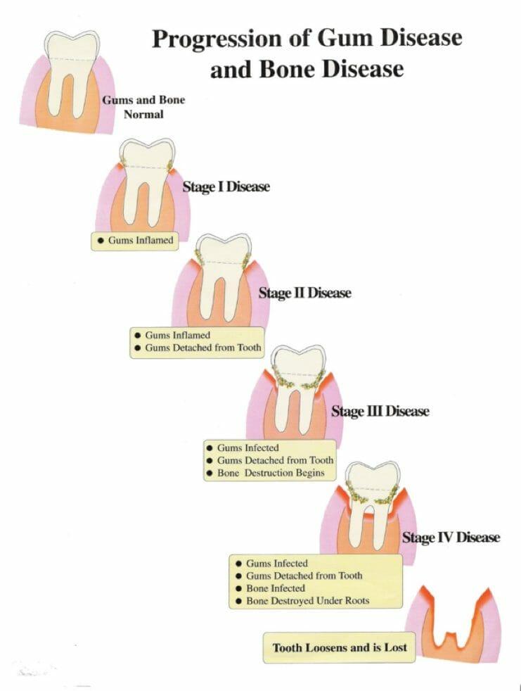 Dental Now Panorama Periodontal treatment